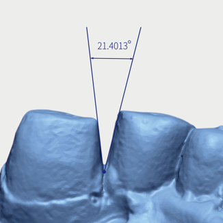 Model scan